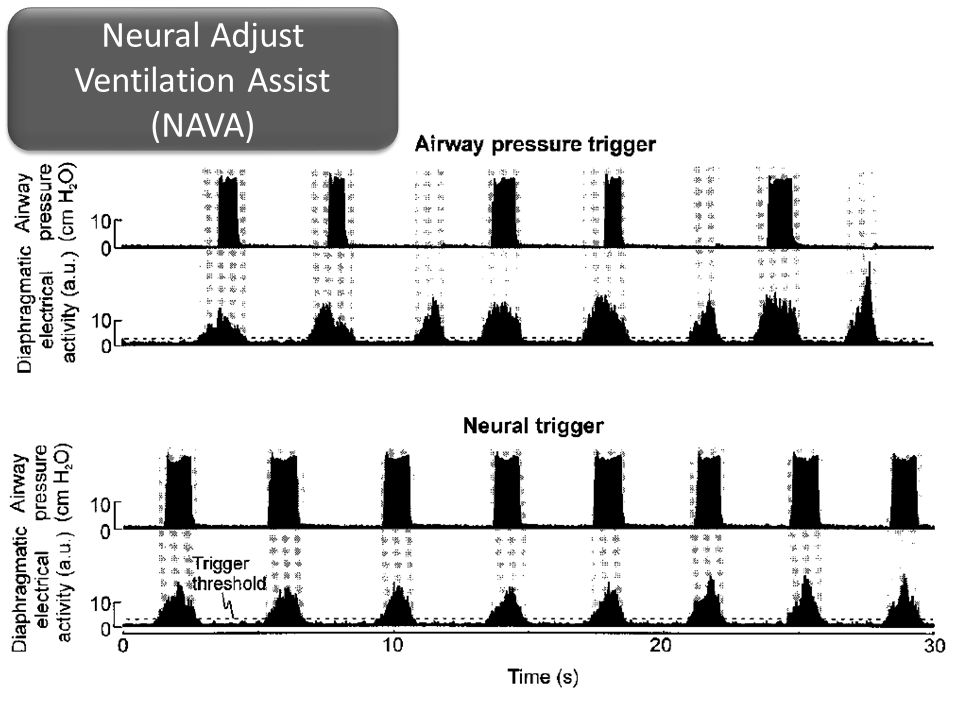 Neural Adjust Ventilation Assist (NAVA)