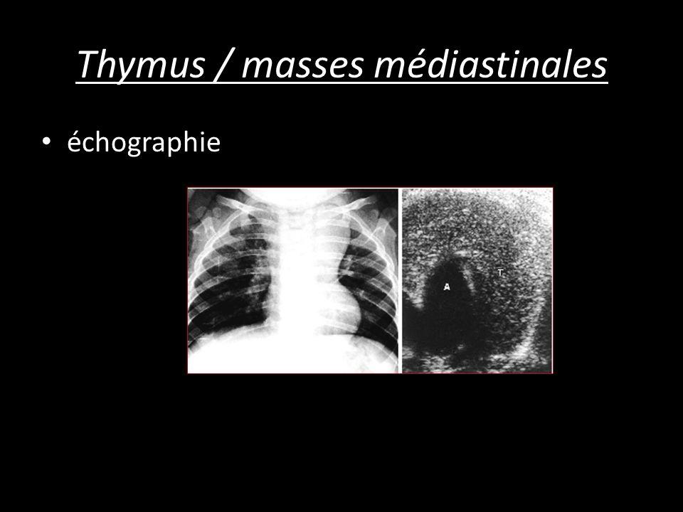 Thymus / masses médiastinales