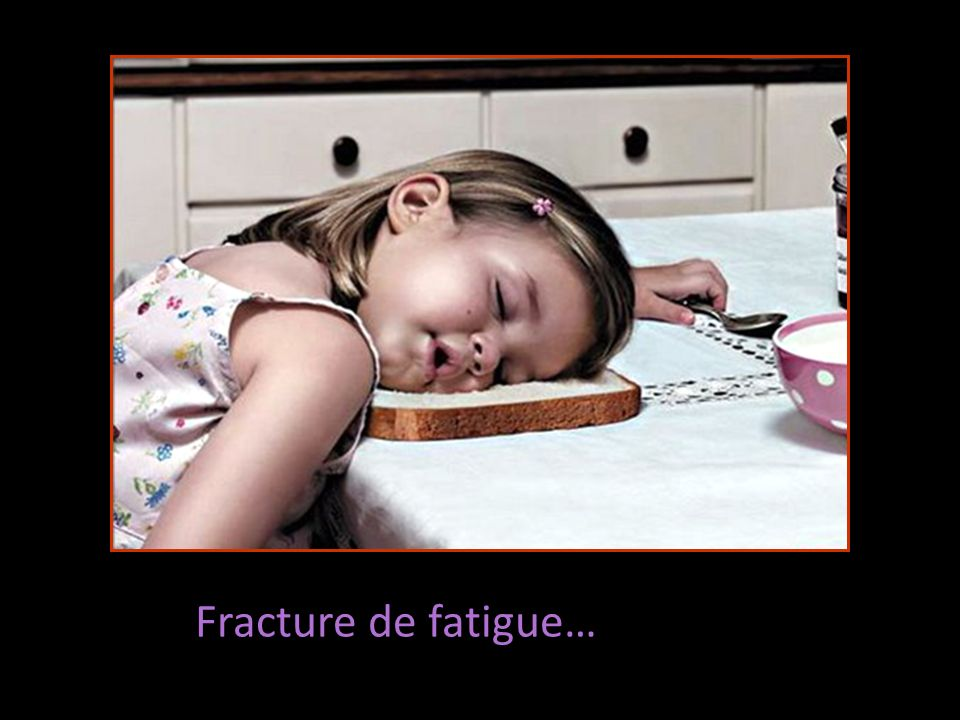 Fracture de fatigue…
