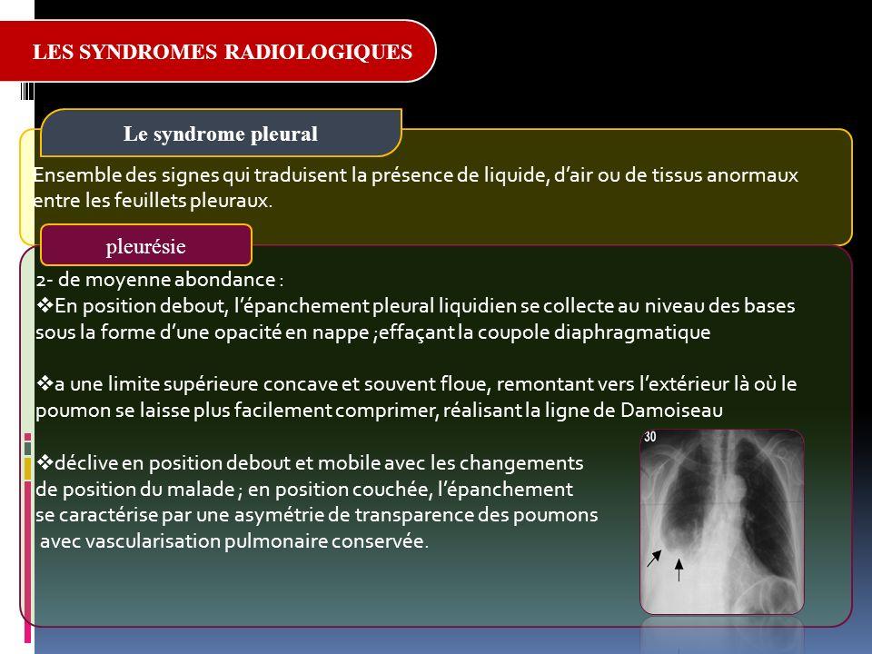 Bases d interpr tation du telethorax ppt video online - Causes des vertiges en position couchee ...