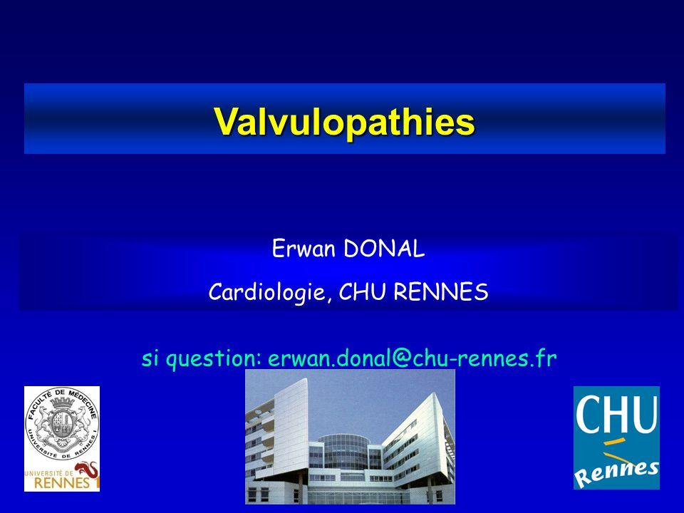 Valvulopathies Erwan DONAL Cardiologie, CHU RENNES - ppt video ...