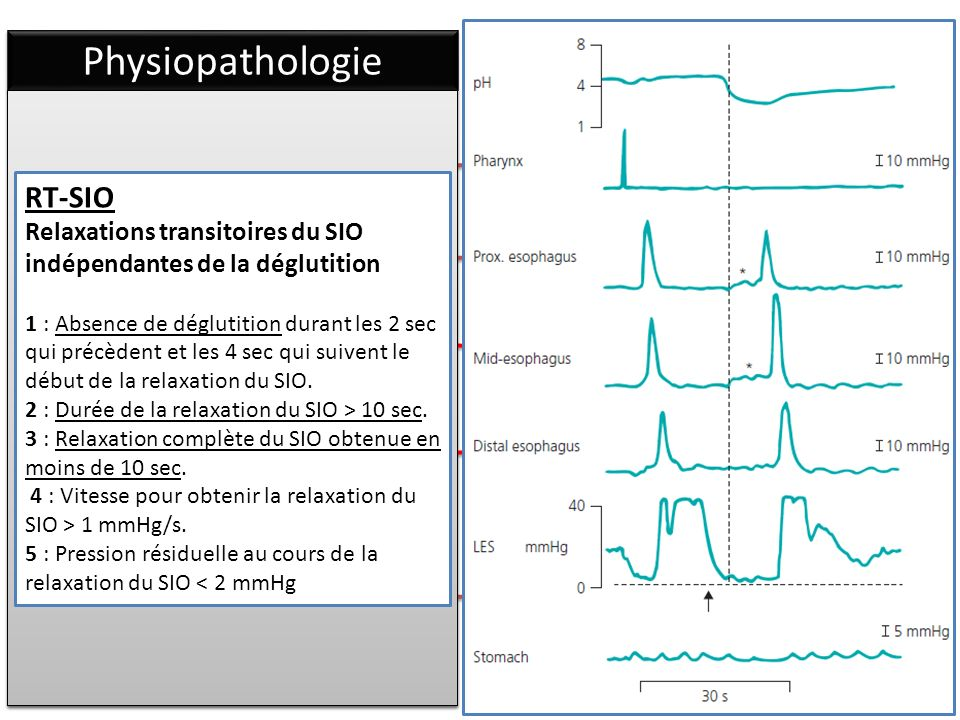 Physiopathologie RT-SIO Relaxations transitoires du SIO