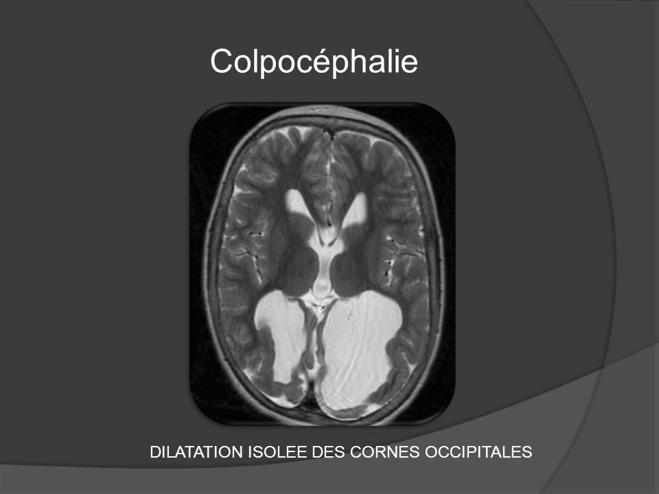 DILATATION ISOLEE DES CORNES OCCIPITALES