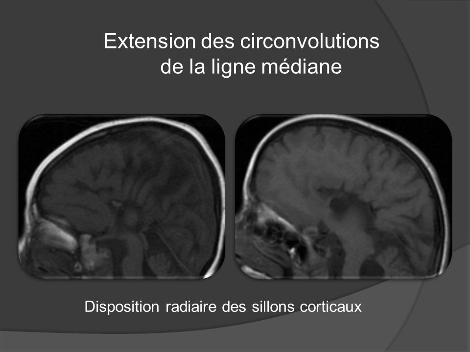 Extension des circonvolutions de la ligne médiane