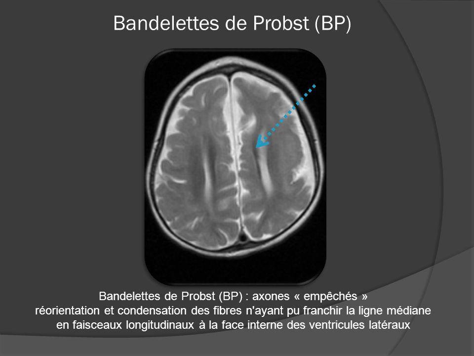 Bandelettes de Probst (BP)