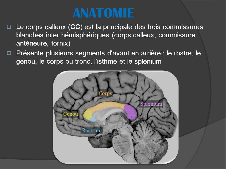ANATOMIE Le corps calleux (CC) est la principale des trois commissures blanches inter hémisphériques (corps calleux, commissure antérieure, fornix)
