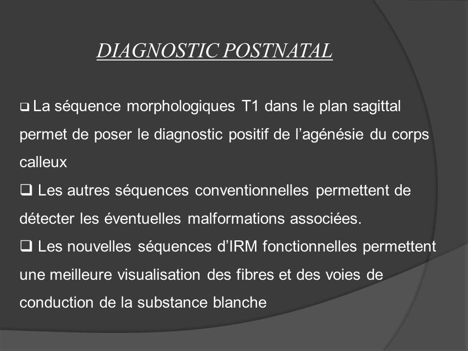 DIAGNOSTIC POSTNATAL La séquence morphologiques T1 dans le plan sagittal permet de poser le diagnostic positif de l'agénésie du corps calleux.