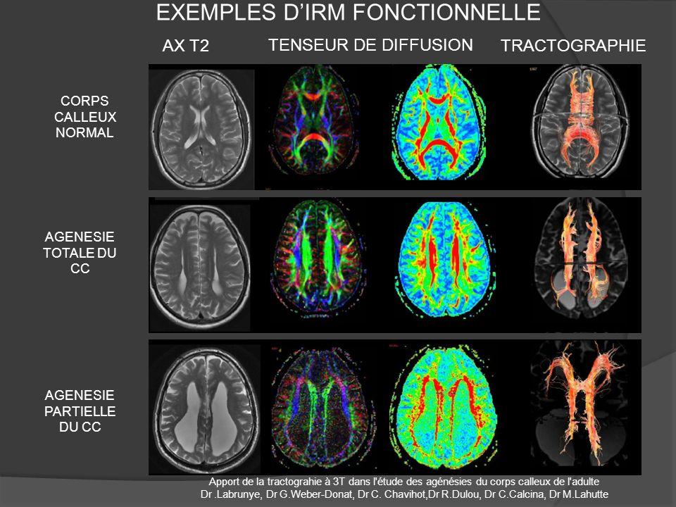 EXEMPLES D'IRM FONCTIONNELLE