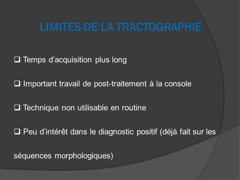 LIMITES DE LA TRACTOGRAPHIE