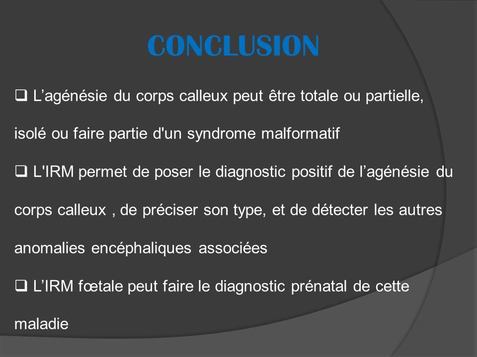 CONCLUSION L'agénésie du corps calleux peut être totale ou partielle, isolé ou faire partie d un syndrome malformatif.