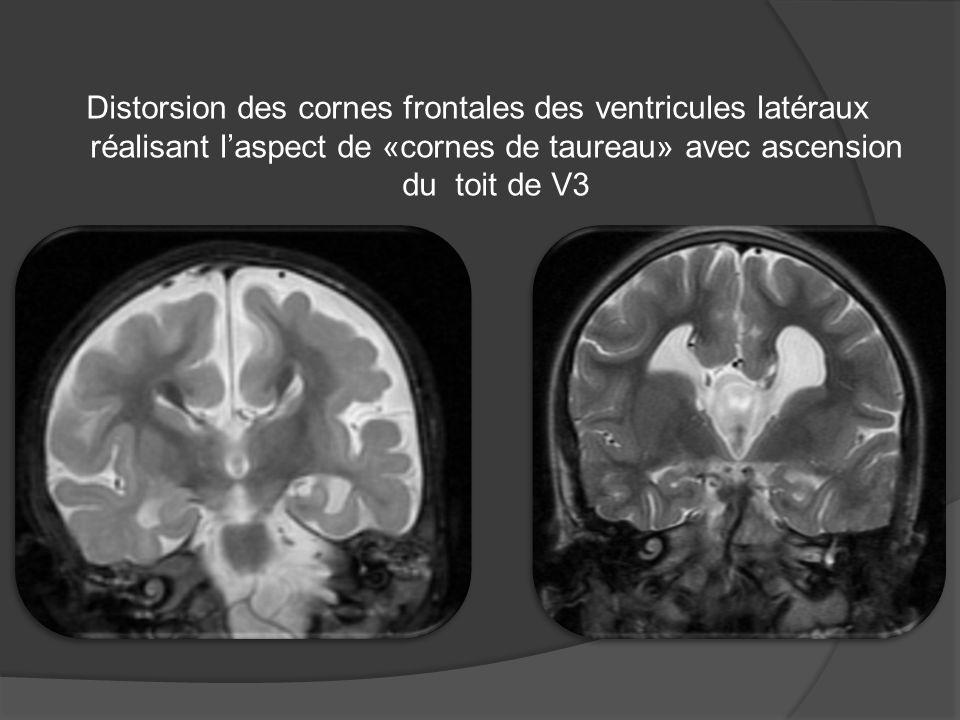 Distorsion des cornes frontales des ventricules latéraux réalisant l'aspect de «cornes de taureau» avec ascension du toit de V3