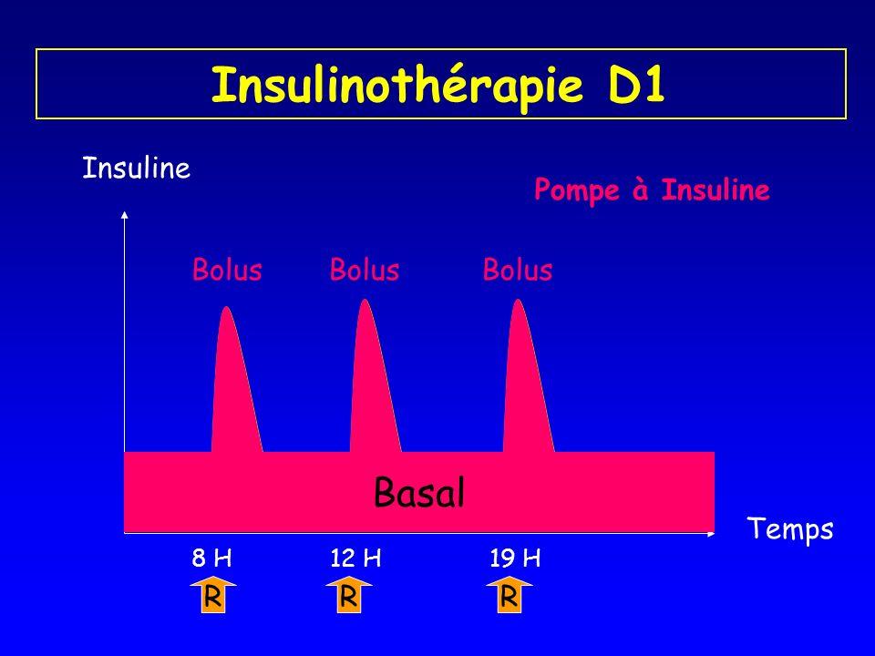 Insulinothérapie D1 Basal Insuline Pompe à Insuline Bolus Temps R 8 H