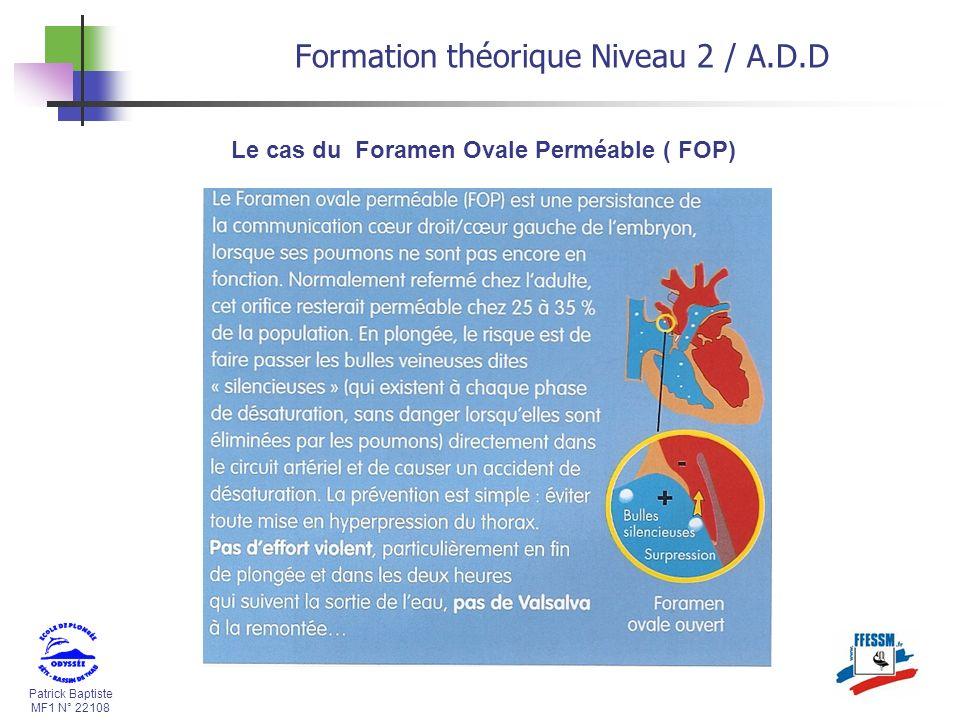 Le cas du Foramen Ovale Perméable ( FOP)