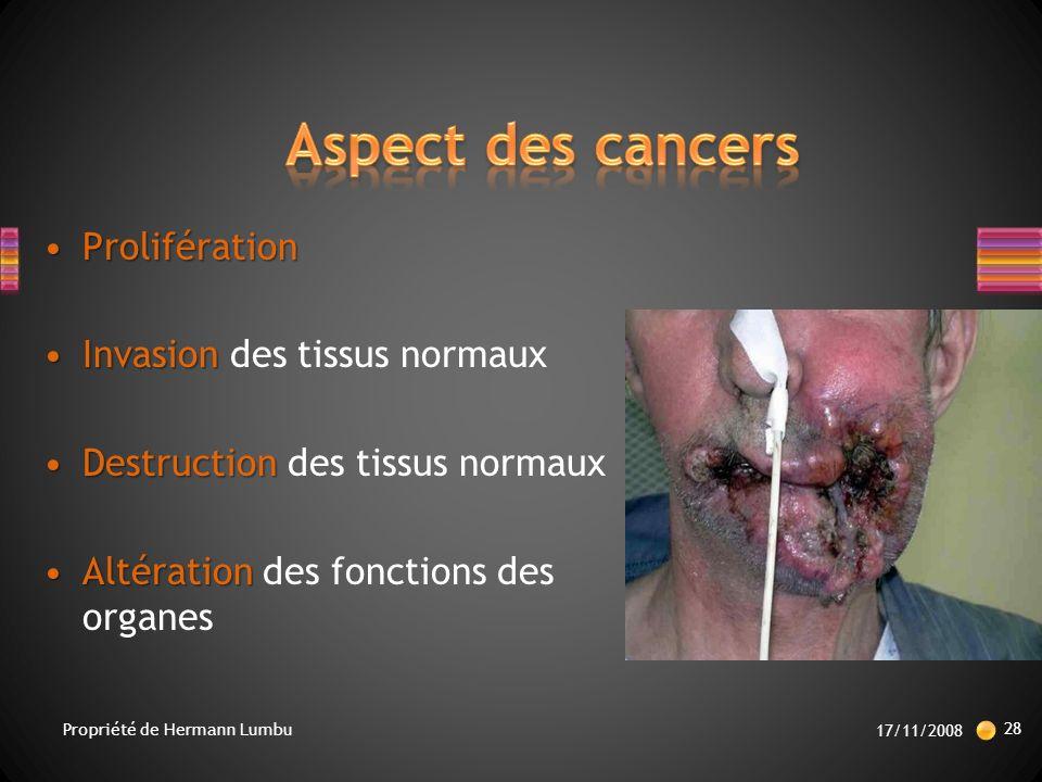 Aspect des cancers Prolifération Invasion des tissus normaux