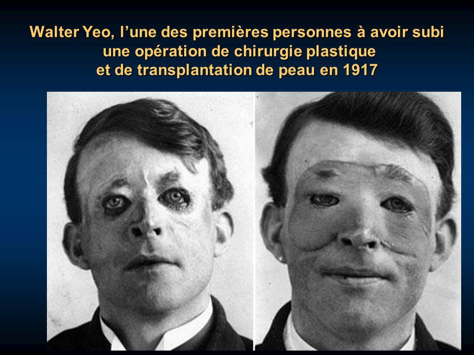 Walter Yeo, l'une des premières personnes à avoir subi une opération de chirurgie plastique et de transplantation de peau en 1917