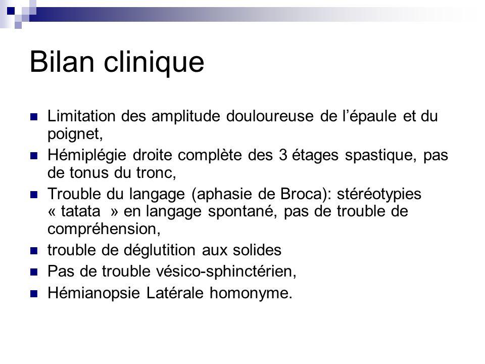 Bilan clinique Limitation des amplitude douloureuse de l'épaule et du poignet,