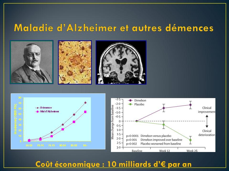 Maladie d'Alzheimer et autres démences