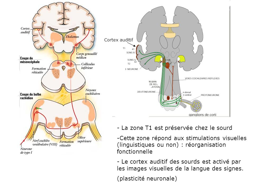 La zone T1 est préservée chez le sourd