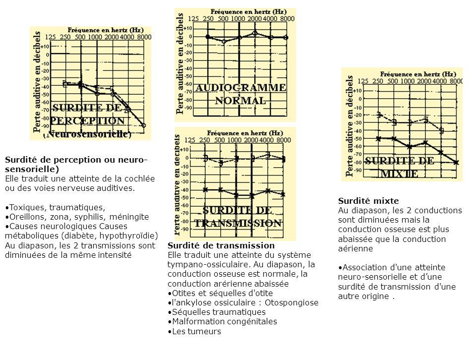 Surdité de perception ou neuro-sensorielle) Elle traduit une atteinte de la cochlée ou des voies nerveuse auditives.