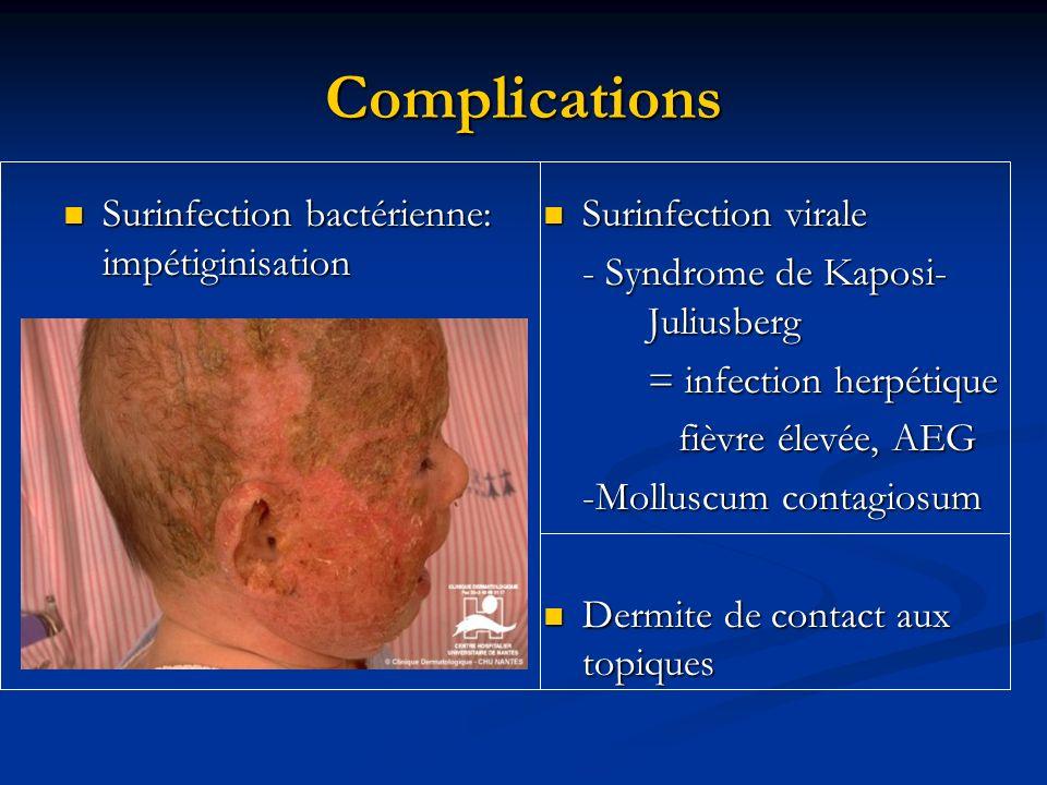 Complications Surinfection bactérienne: impétiginisation