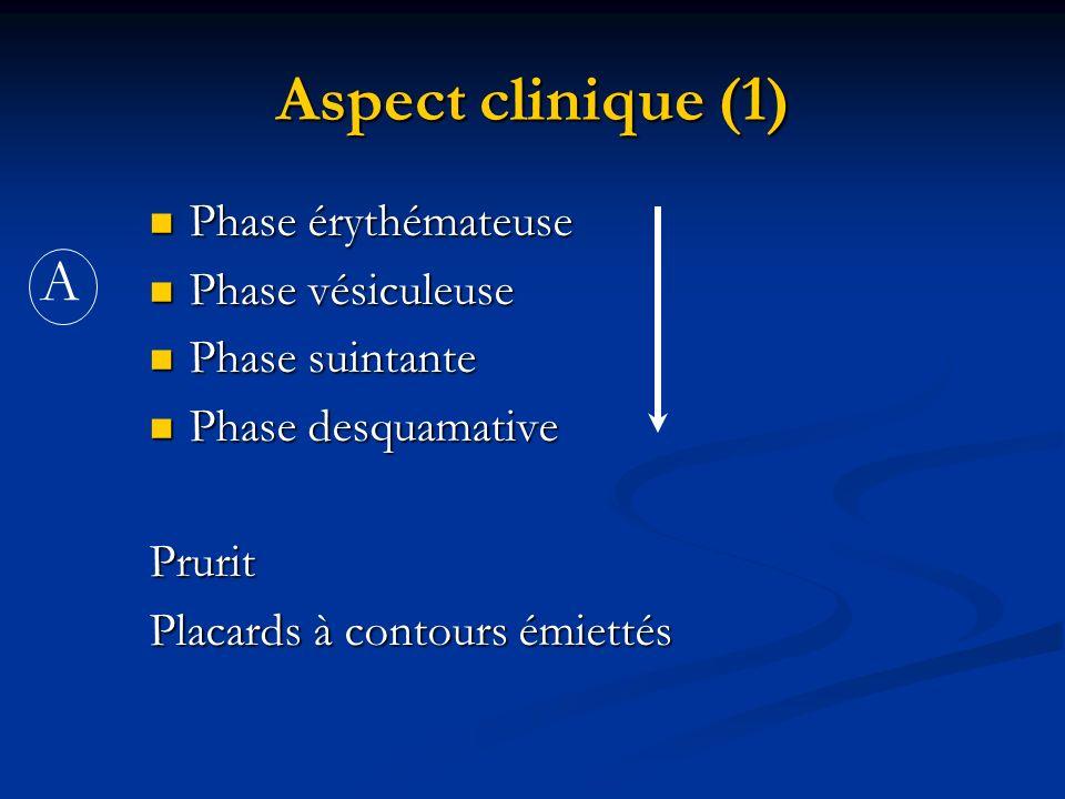 Aspect clinique (1) A Phase érythémateuse Phase vésiculeuse