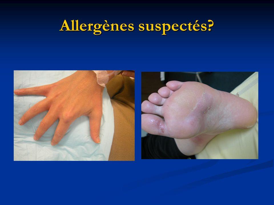 Allergènes suspectés