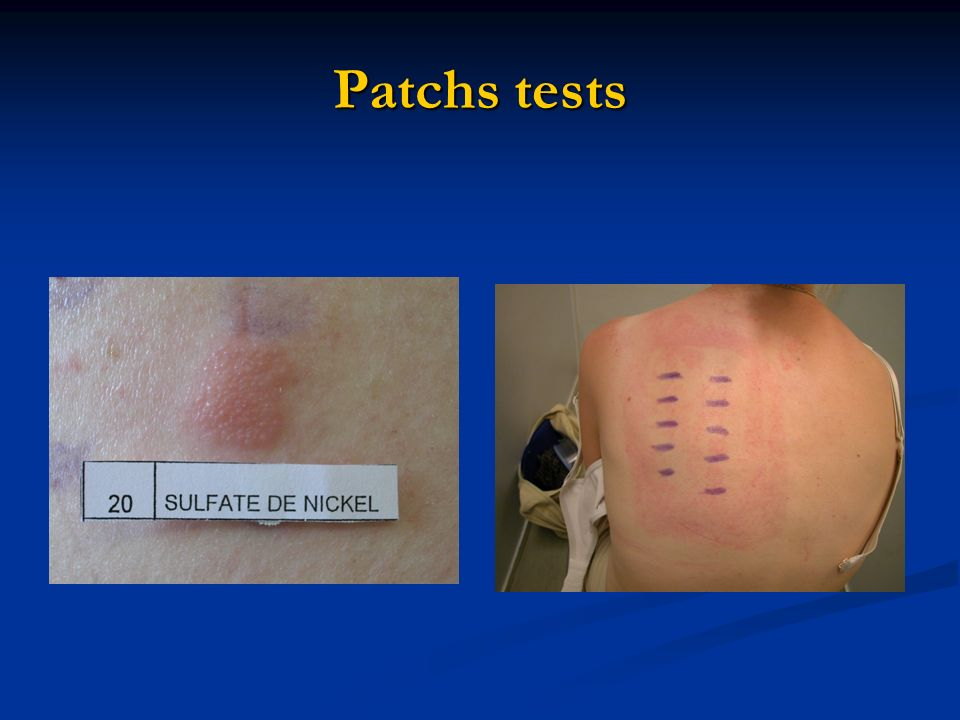 Patchs tests