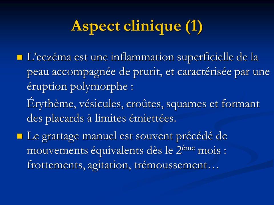 Aspect clinique (1) L'eczéma est une inflammation superficielle de la peau accompagnée de prurit, et caractérisée par une éruption polymorphe :