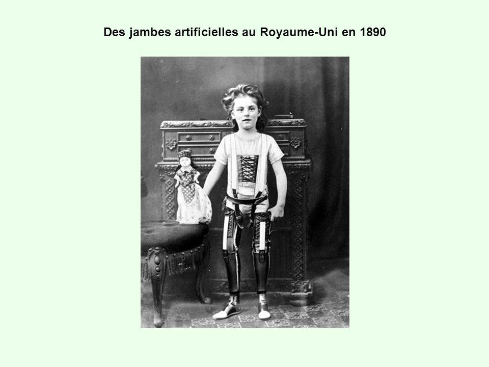 Des jambes artificielles au Royaume-Uni en 1890