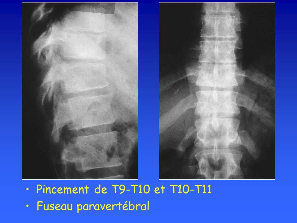 Pincement de T9-T10 et T10-T11 Fuseau paravertébral