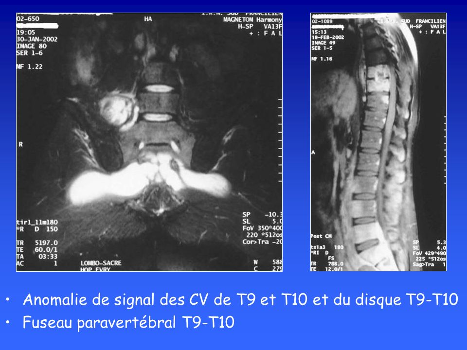 Anomalie de signal des CV de T9 et T10 et du disque T9-T10