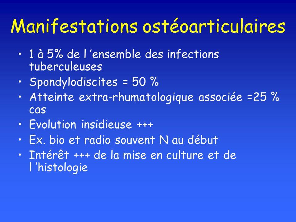 Manifestations ostéoarticulaires