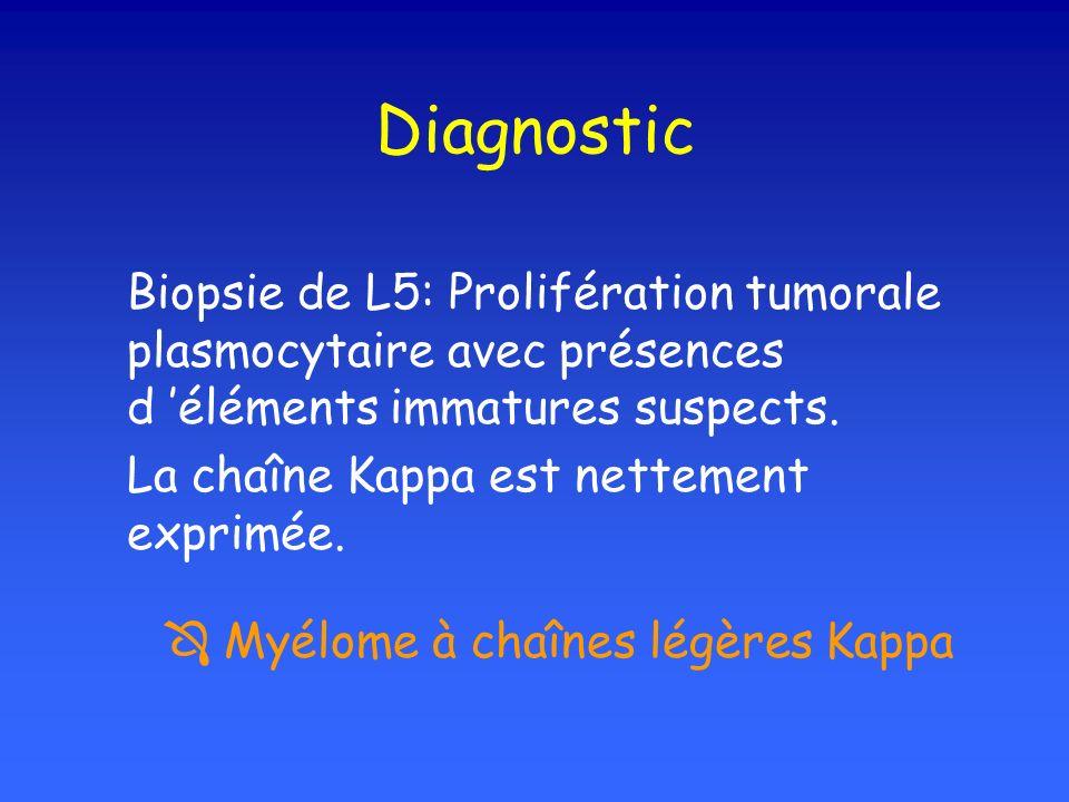 Diagnostic Biopsie de L5: Prolifération tumorale plasmocytaire avec présences d 'éléments immatures suspects.