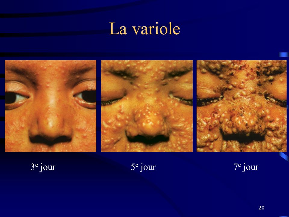 La variole 3e jour 5e jour 7e jour