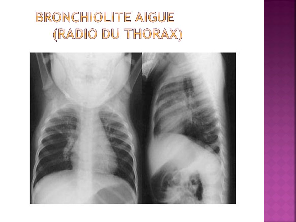 Bronchiolite aigue (Radio du thorax)