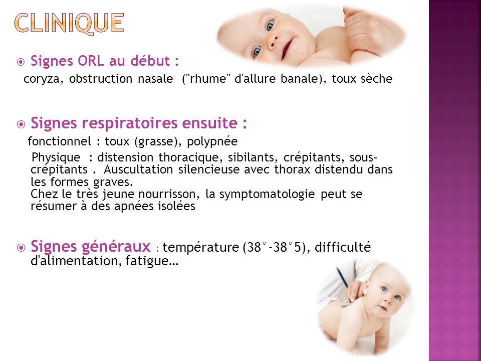 clinique Signes respiratoires ensuite :