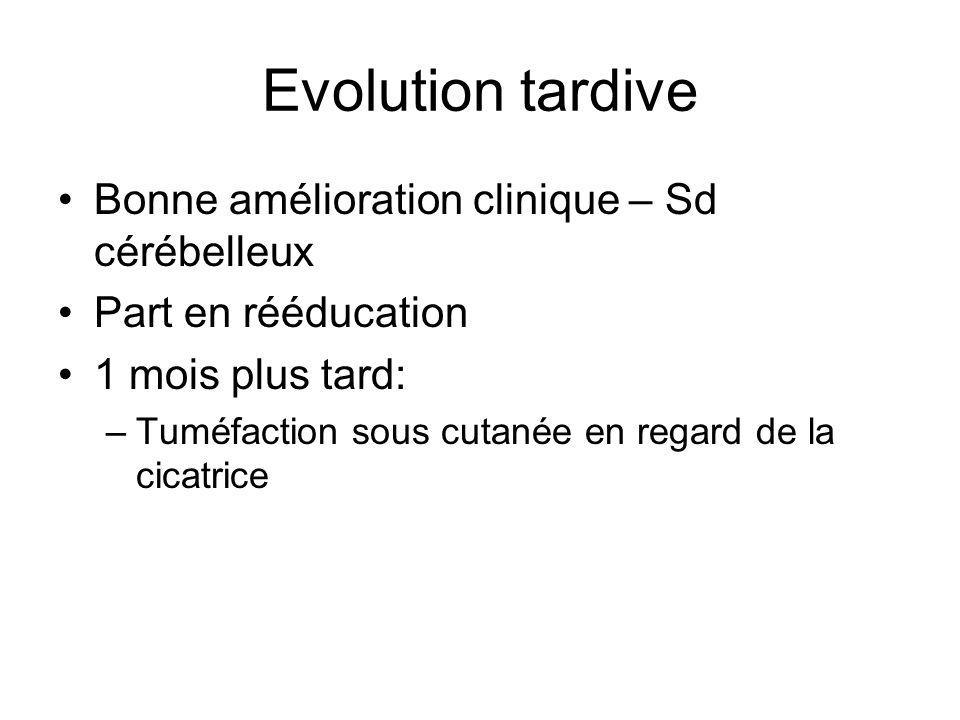 Evolution tardive Bonne amélioration clinique – Sd cérébelleux