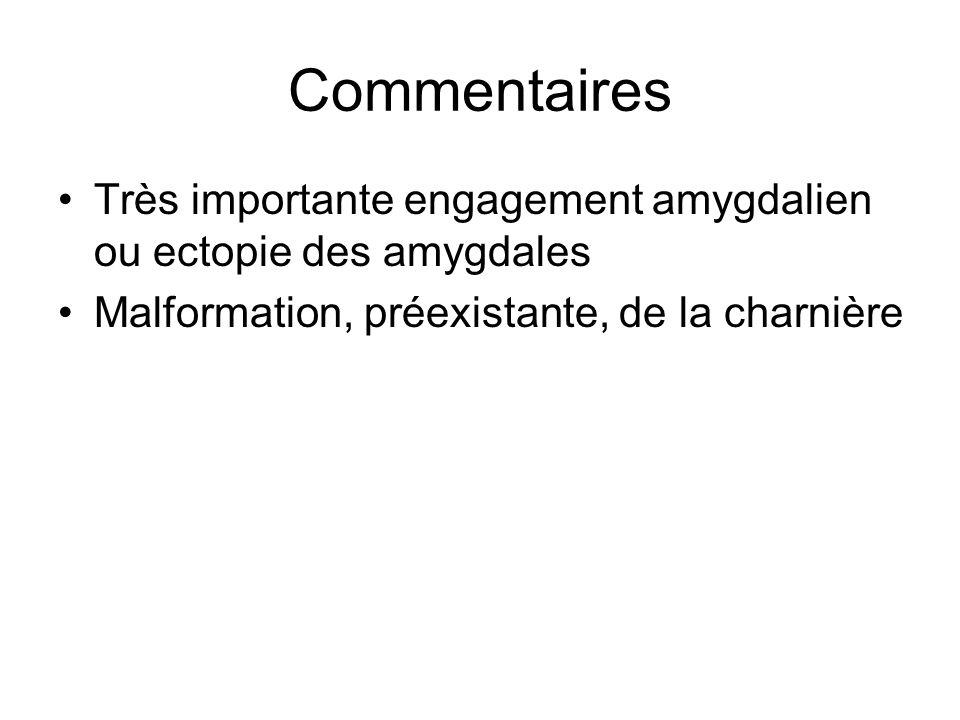 Commentaires Très importante engagement amygdalien ou ectopie des amygdales.