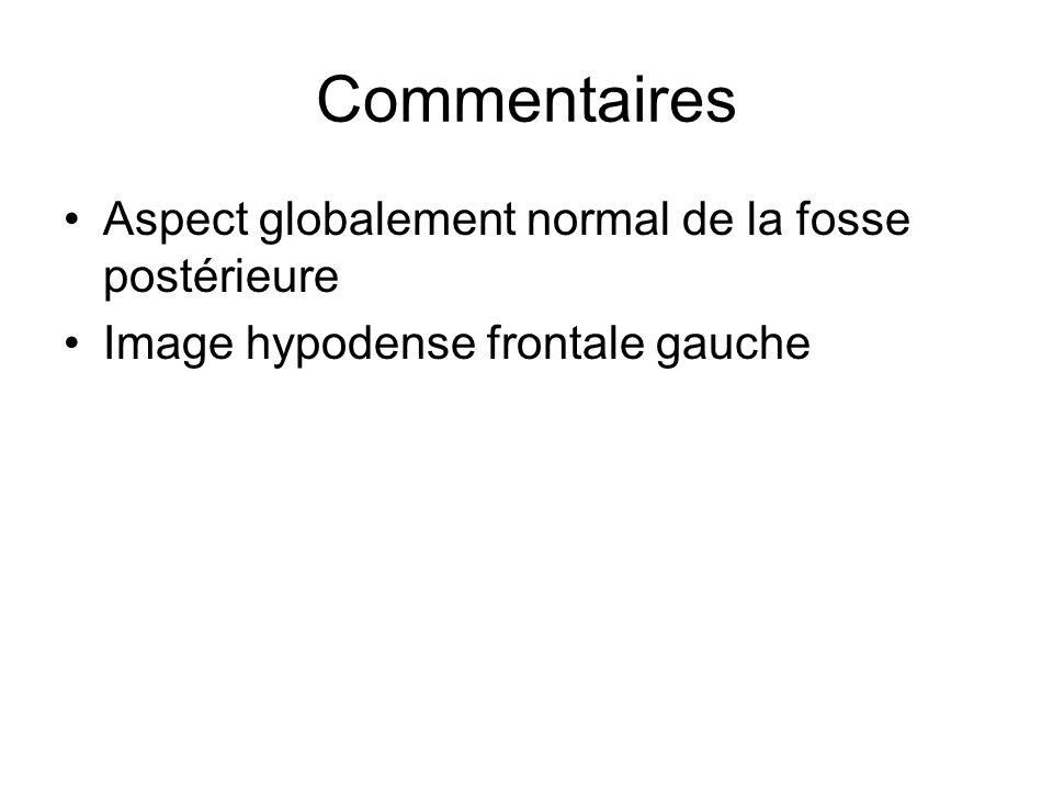 Commentaires Aspect globalement normal de la fosse postérieure