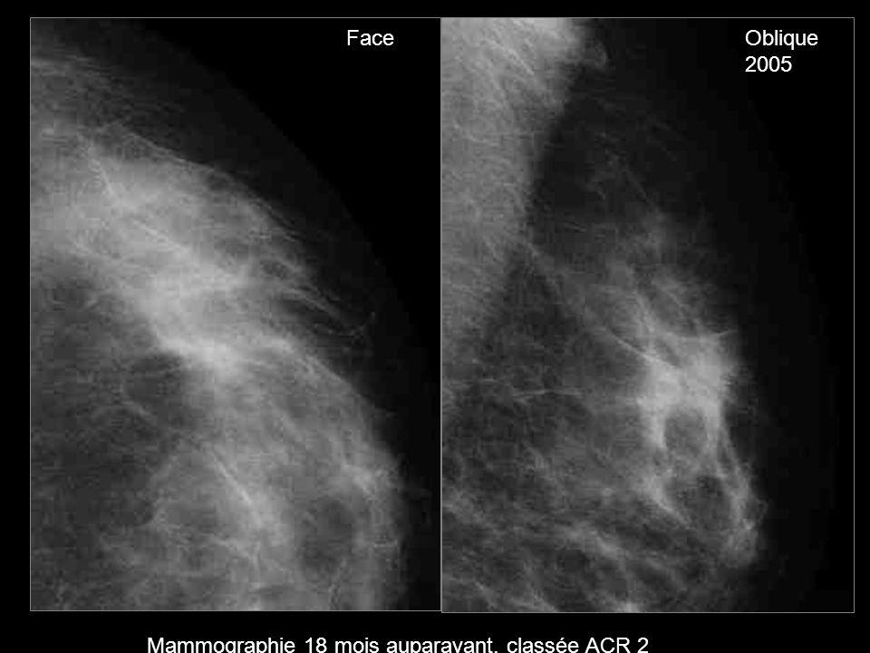 Face Oblique 2005 Mammographie 18 mois auparavant, classée ACR 2