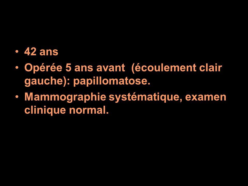 42 ans Opérée 5 ans avant (écoulement clair gauche): papillomatose.