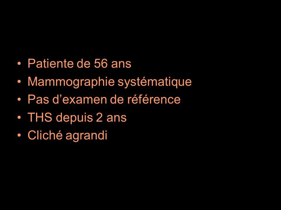 Patiente de 56 ans Mammographie systématique. Pas d'examen de référence.