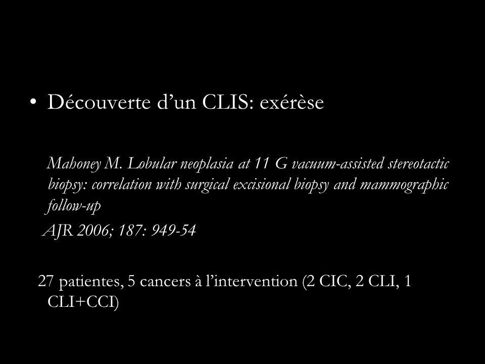 Découverte d'un CLIS: exérèse