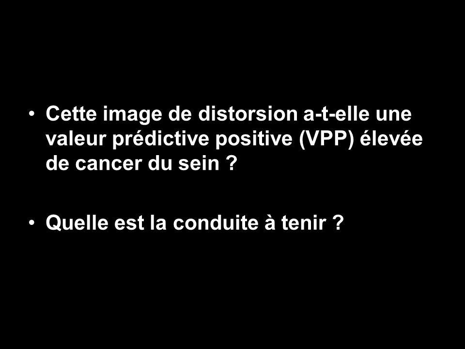 Cette image de distorsion a-t-elle une valeur prédictive positive (VPP) élevée de cancer du sein