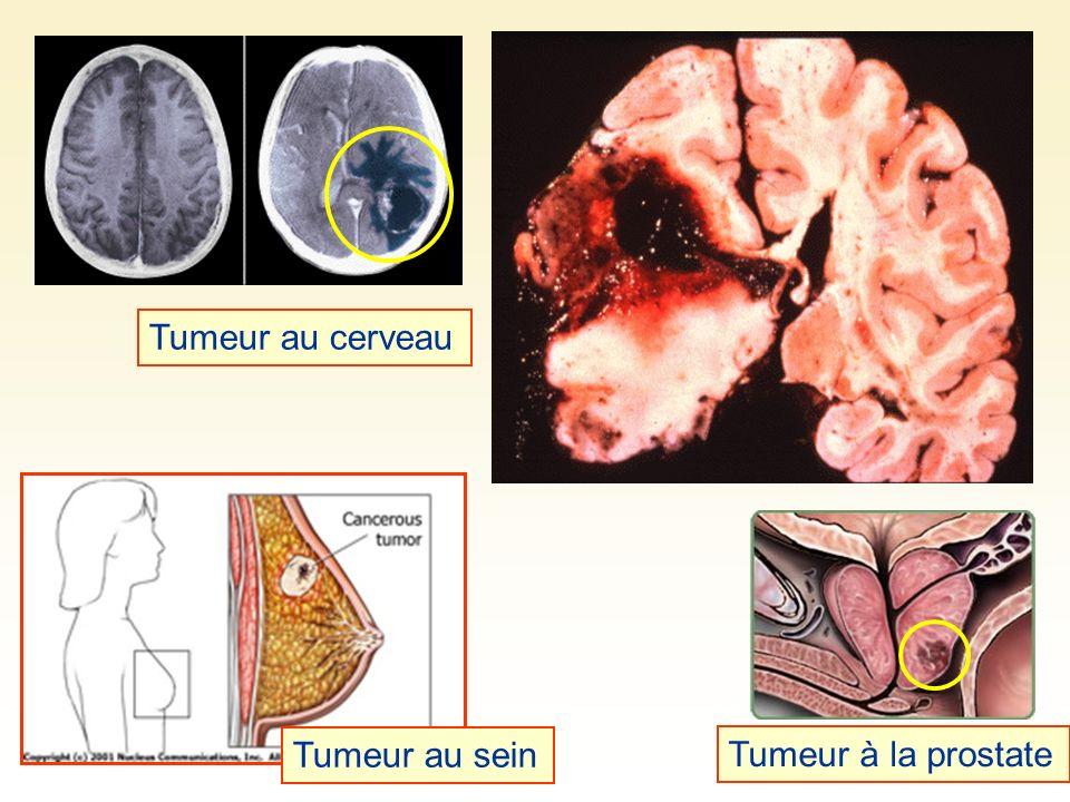 Tumeur au cerveau Tumeur au sein Tumeur à la prostate