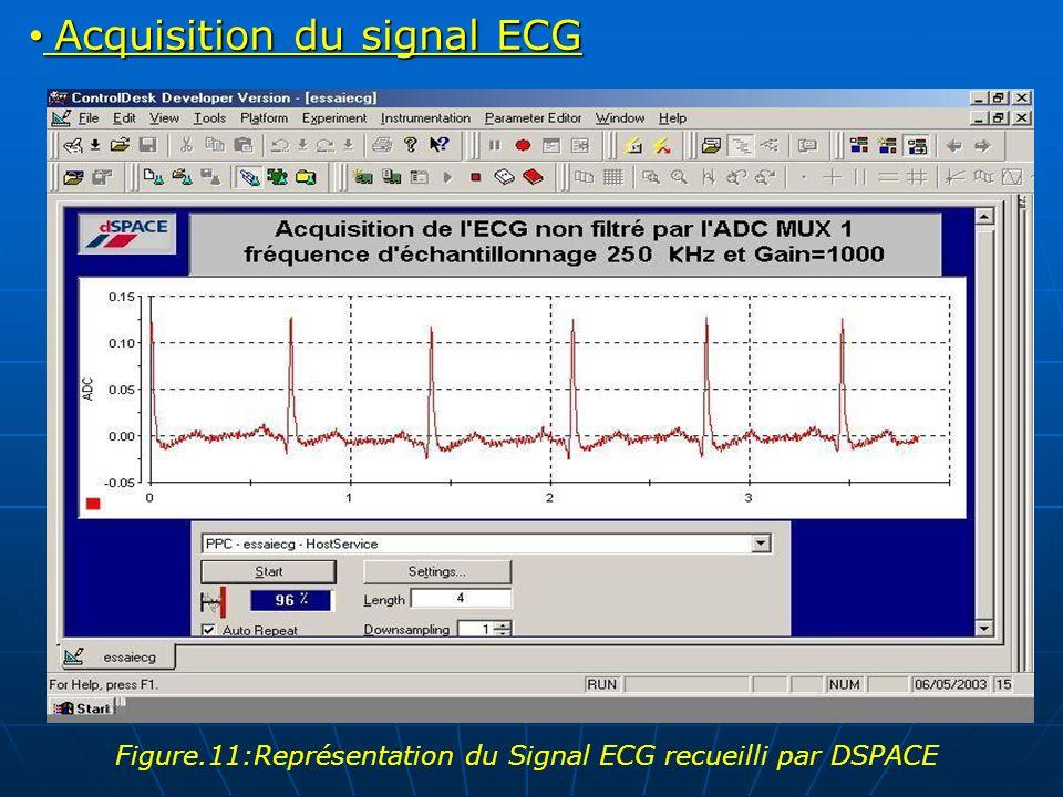 Acquisition du signal ECG