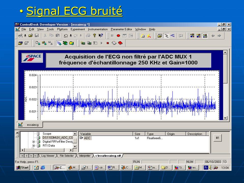 Signal ECG bruité