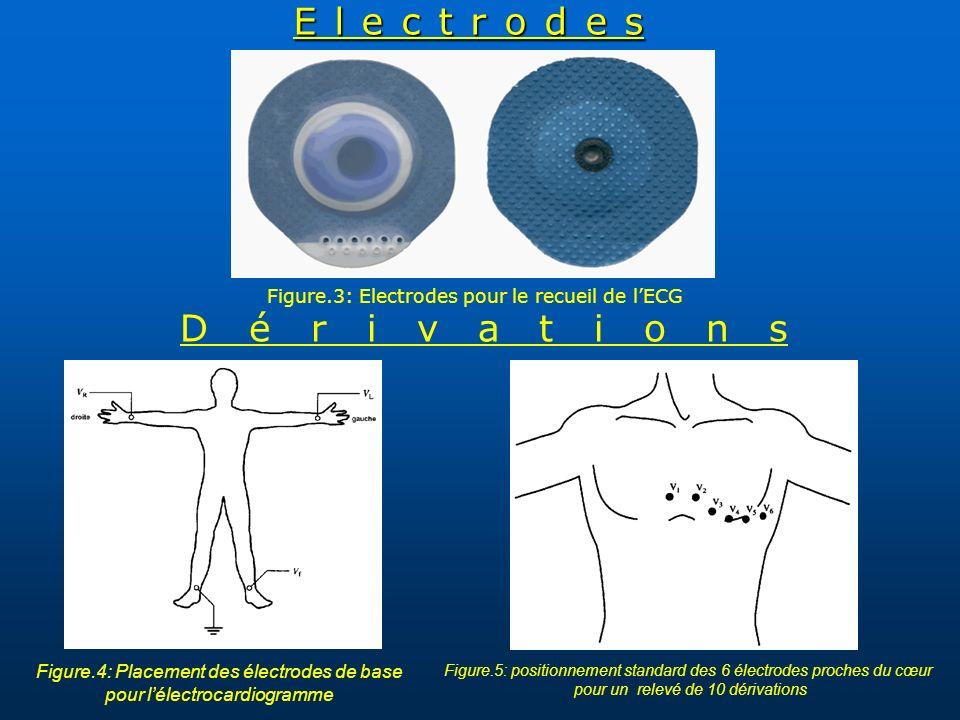Electrodes Dérivations Figure.3: Electrodes pour le recueil de l'ECG