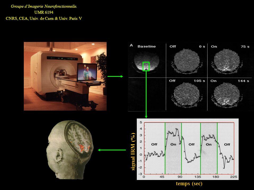 temps (sec) signal IRM (%)
