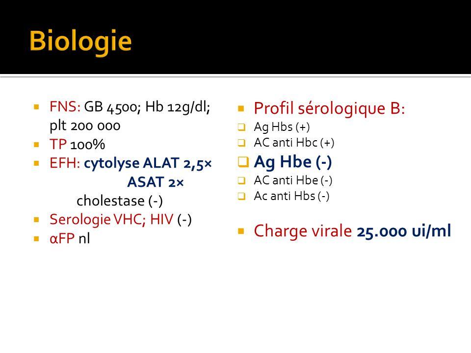 Biologie Profil sérologique B: Ag Hbe (-) Charge virale 25.000 ui/ml